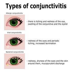 Types of conjunctivitis