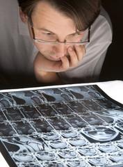 Worried man looking at his MRI