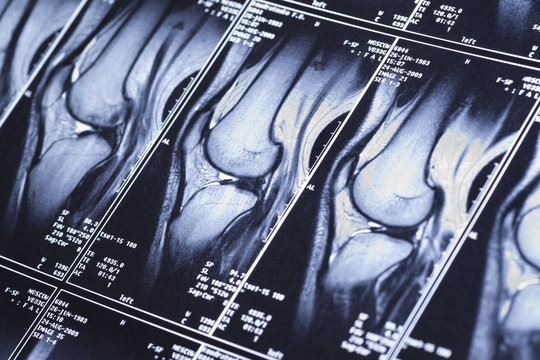 My knee MRI - damage of cross-shaped ligaments