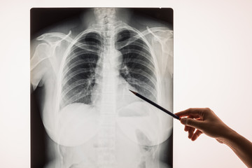 black and white X-ray Image of a human chest for a medical diagnosis