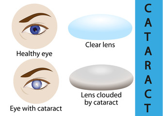 A cataract is an clouding crystalline lens inside the eye.