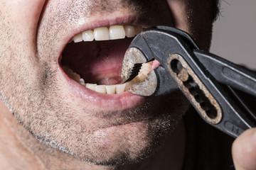 Zahnbehandlung mit Rohrzange