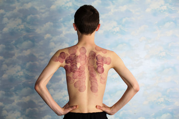 Young man back after marking of vacuum cupping, sport therapy