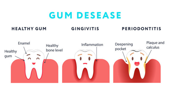 Step of gum disease. Healthy tooth and gingivitis.. Cute cartoon design, illustration isolated on blue background.