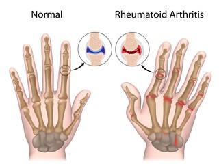 Rheumatoid arthritis of hand