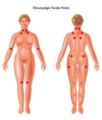 vector medical illustration of Fibromyalgia tender points