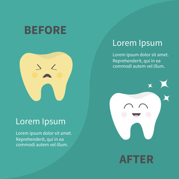Before after Infographic Healthy smiling tooth icon. Sining star. Crying yellow bad ill teeth with caries. Template with text. Cute character. Oral dental hygiene. Baby background. Flat design.