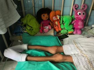 """A girl lays on a bed at the """"J.M. de los Rios"""" Children Hospital in Caracas"""
