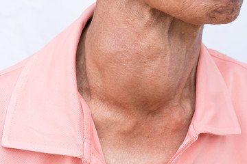 goiter.Woman with hyper thyroid