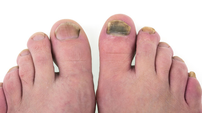 Sick nail on the leg, fungus on the big toe