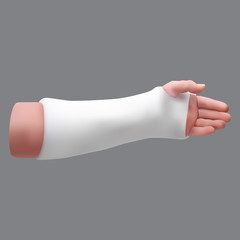 Gypsized broken arm. Isolated realistic object. Vector