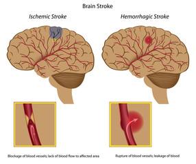 Types of brain stroke