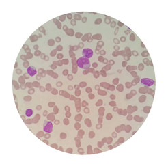 Blood smear under microscope present red blood cell abnormal morphology with lymphocyte ,blast cell and rouleaux formation.