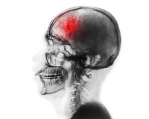 Stroke . Cerebrovascular accident . Film x-ray of human skull and cervical spine .