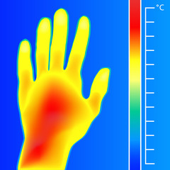 Thermal imager medical scan Human hand. The image of a arm using Infrared Thermograph. Scale is degrees Fahrenheit.