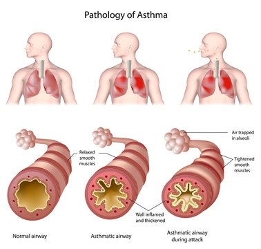 Anatomy of asthma, labeled.