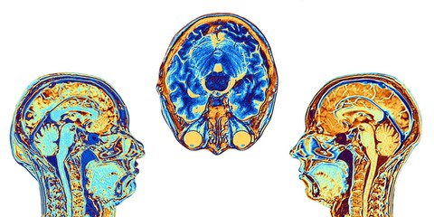 MRI scans of normal brains, artwork