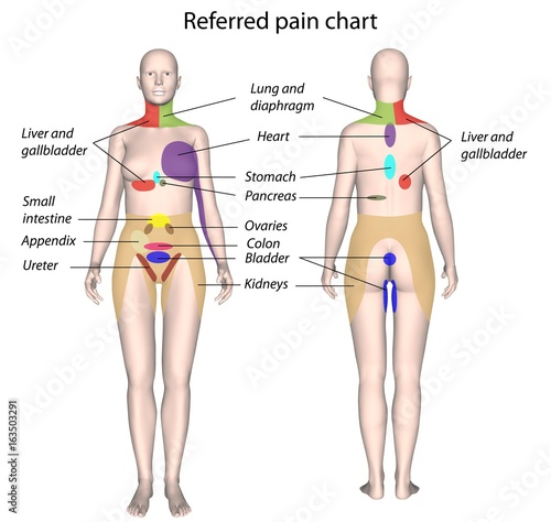 Organ Referred Pain Chart Stock Photo And Royaltyfree Images On New Referred Pain Patterns
