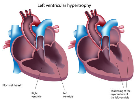 Heart disease - left ventricular hypertrophy, labeled.