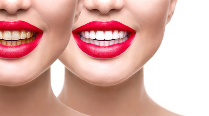 Woman teeth after whitening. Dental health concept