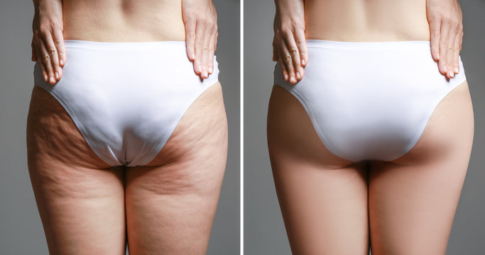 Young woman body before and after anti cellulite treatment on dark background