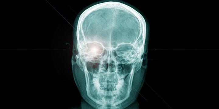 x ray of human head with shining eye