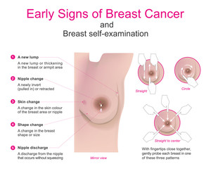 Early signs of breast cancer and breast self-examination. Vector chart.