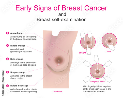 Breast cancer self examination instructional video 2 Part 2 5
