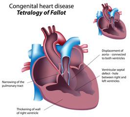 Congenital heart disease: Tetralogy of Fallot