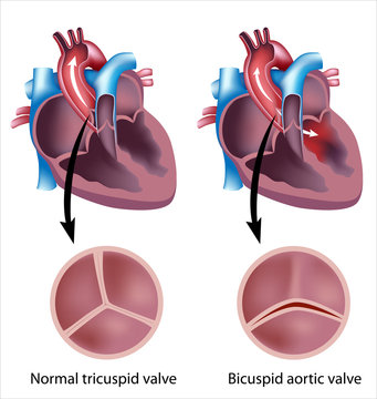 Heart valve defect: bicuspid aortic valve