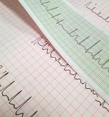 elettrocardiogramma al cuore - in perfetta forma