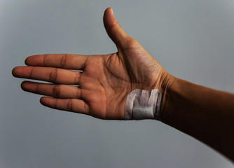 The hand wound caused by an accident.