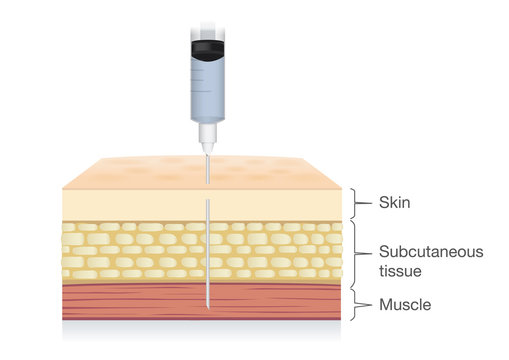 Injection needle insert medications into the muscle layer of skin. Ideal for medical diagram about patient treatment.