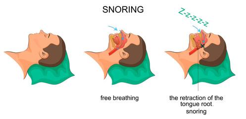 sleeping man snores