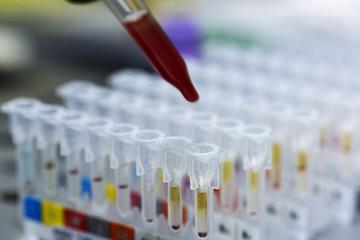 kan grubu ve testler