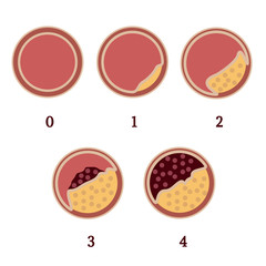 Atherosclerosis stages 1