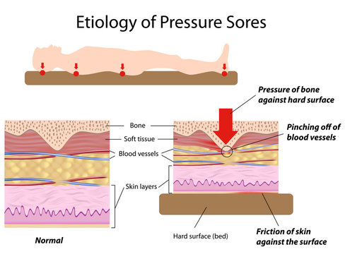 Etiology of pressure sores