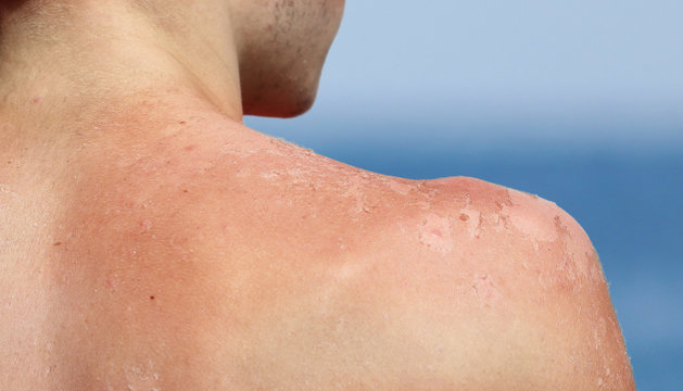 Young boy skin is  peeling  after sunburn