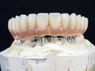 Monolithic zirconia restorations full arch implant supported with the ceramic load in vestibular, back background
