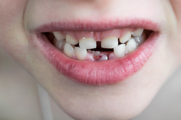 The open mouth of the child. Two rows of teeth. In the bottom row fell out two milk teeth. Growing an adult tooth. Visible crack and the wound on the lower gum after the removal of the lower teeth.