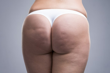 Fat female body with cellulite, fatty hips and buttocks, gray background