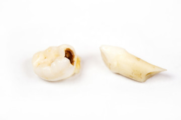 Pulled-out milk tooth