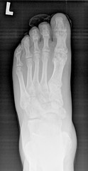 After treatment with Herbert screw - x-ray.