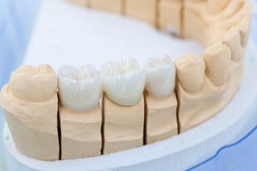Im Dentallabor: Prothesensattel mit Zahnersatz