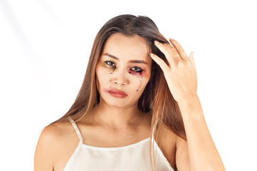 Young Asian woman with Bruise on the face. Gender issue or criminal violence concept