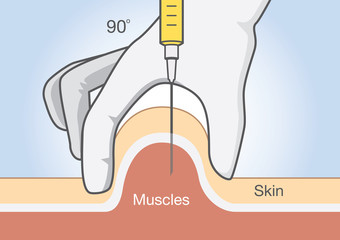 Doctor insert medications into the muscle tissue with injection needle.