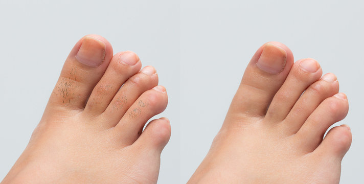 Female feet before and after hair removal treatment on toes