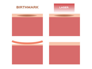 laser remove the birthmark vector