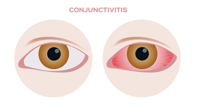 Conjunctivitis.  pink and red inflammation eye