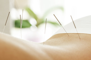 Female back with steel needles during procedure of acupuncture therapy